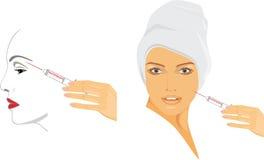 Kosmetyczny zastrzyk hyalurowy kwas royalty ilustracja