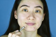 Kosmetyka tr?dzik, Azjatycka kobieta stosuje concealer makeup kryj?wka tr?dzika sk?ry twarzowy problem obraz royalty free