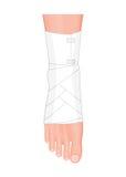 Kostka z Elastycznym bandażem Zdjęcie Stock