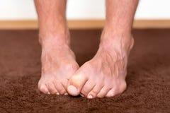 Koude voeten Stock Foto's