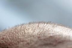 Krótki włosy na kierowniczym zakończeniu w górę Skalpu mężczyzny głowa baldness łysy człowieku Problemy z włosianym przyrostem na obrazy stock