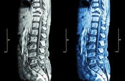 Kręgosłup metastaza (nowotwór rozprzestrzeniający thoracic kręgosłup Obrazy Royalty Free