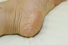 Krakingowa skóra na piętach Nożny traktowanie fotografia royalty free