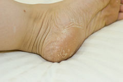 Krakingowa skóra na piętach Nożny traktowanie obrazy stock