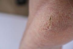 Krakingowe pięty Surowy pęknięcie r z dalszy głębokimi pęknięciami i suszy płatkowatą skórę zdjęcie royalty free