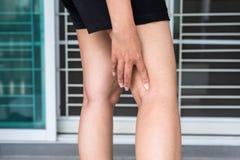 Krampfadern auf dem Bein der Frau, normale Adern nahe der Hautschicht schwellen heraus Lizenzfreies Stockfoto