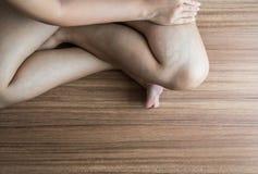 Krampfadern auf dem Frauenbein, normale Adern nahe der Hautschicht schwellen heraus, und Blut wird angesammelt, um ein blutiges B Stockbilder