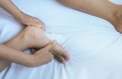 Krampfadern auf der dem Bein oder dem Fuß Frau, Körper- und Gesundheitswesenkonzept Lizenzfreie Stockfotos
