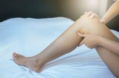 Krampfadern auf der dem Bein oder dem Fuß Frau, Körper- und Gesundheitswesenkonzept Stockfoto
