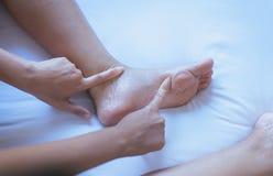 Krampfadern auf der dem Bein oder dem Fuß Frau, Körper- und Gesundheitswesenkonzept Lizenzfreie Stockfotografie