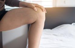 Krampfadern auf der dem Bein oder dem Fuß Frau, Körper- und Gesundheitswesenkonzept Stockfotos