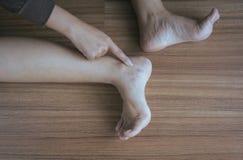Krampfadern auf der dem Bein oder dem Fuß Frau, Körper- und Gesundheitswesenkonzept Stockbild