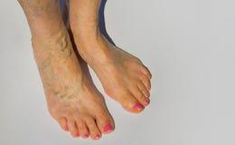Krampfadern auf weibliche Beine Lizenzfreie Stockfotos