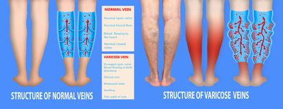 Krampfadern auf weibliche ?ltere Beine Die Struktur von normalen und Krampfadern stockbild