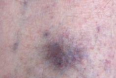 Krampfadern und Blutgefäße auf dem Bein eines älteren Mannes Lizenzfreie Stockfotografie