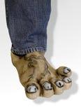 Kranke Füße Stockfotografie