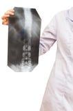 Krankenschwester zeigt Röntgenstrahlbild mit Wirbelsäule Stockbilder