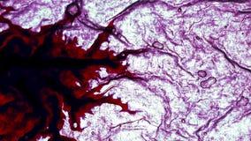 Krankheit beeinflußt den Körper stock video