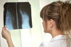 Krankheit. Weiblicher Doktor, der einen Röntgenstrahl überprüft Lizenzfreie Stockbilder
