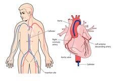 Kransslagadercatheter stock illustratie
