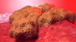Krebszelltumor, medizinische Illustration lizenzfreie stockfotos