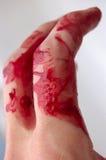krew palce obrazy royalty free