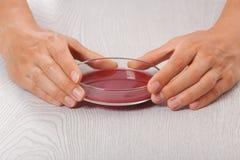 Krew w Petri naczyniach Zdjęcia Royalty Free
