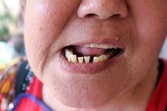 krokiga tänder royaltyfri bild