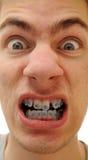 krokiga tänder Arkivbilder