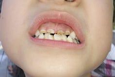 krokiga tänder Fotografering för Bildbyråer