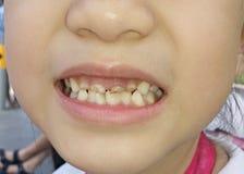 krokiga tänder Royaltyfri Fotografi