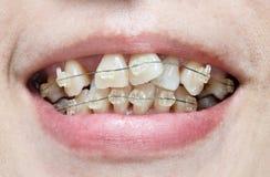 Krokiga tänder med hänglsen Royaltyfria Foton