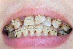 Krokiga tänder med hänglsen Royaltyfri Foto
