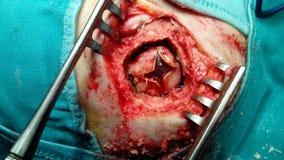 Kronisk subdural hematoma Arkivfoto
