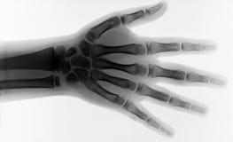 kroppsdelstråle x arkivfoton