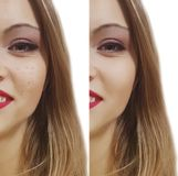 Krosty before and after Fotografia Stock