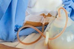 Krwi i fluidu odciek od chirurga pacjenta Obrazy Royalty Free