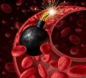 Krwionośnej cyrkulaci niebezpieczeństwo Obrazy Royalty Free