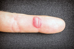 Krwista abrazja na palcu zdjęcia stock