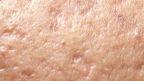 Kugelförmige Blasenakne auf der Haut stock footage