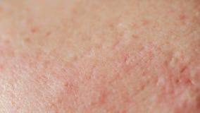Kugelförmige Blasenakne auf der Haut Nahaufnahme Das Konzept der Dermatologie stock footage