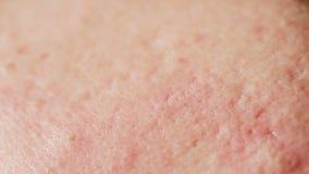 Kugelförmige Blasenakne auf der Haut Nahaufnahme Das Konzept der Dermatologie stock video
