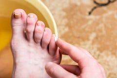 Kukurudza lub clavus na żeńskiej stopie Stosować maść na bąblach zdjęcia stock