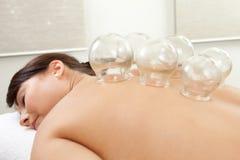 kupa behandling för akupunktur Royaltyfri Bild
