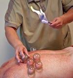 kupa exponeringsglas som gör massage Arkivbild