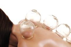 Kupa massage backen av en kvinna Fotografering för Bildbyråer