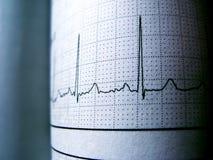 Kurven-Herz-Rhythmus auf Elektrokardiogramm-Rekordpapier Lizenzfreies Stockfoto