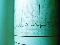 Kurven-Herz-Rhythmus auf Elektrokardiogramm-Rekordpapier stockfotografie