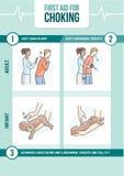 Kväva första hjälpen stock illustrationer