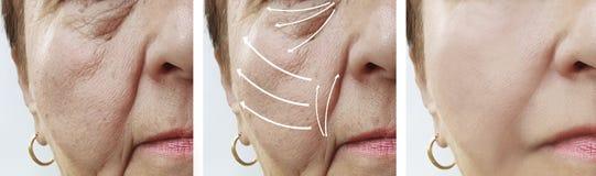 Kvinnaåldringen vänder mot tillvägagångssätt för föryngring för hudskrynklacosmetology före och efter, pil royaltyfri bild
